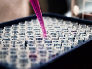 EFSA รายงานประเมินความเสี่ยง สาร BPA